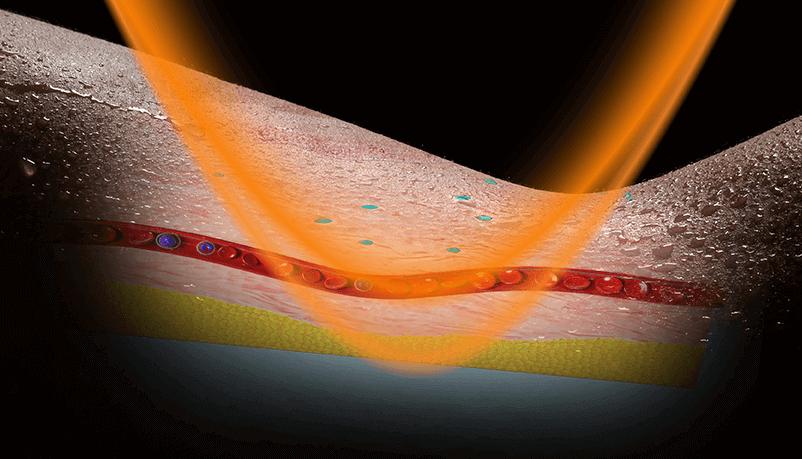 Páratlan hatékonyságú Solocarbon® sugárzótestek